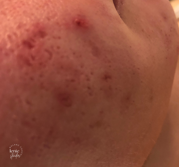 mathilde acne